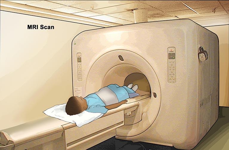 triệu chứng của ung thư dạ dày ở trẻ em