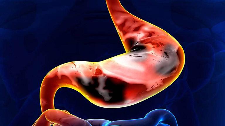 hình ảnh ung thư dạ dày giai đoạn cuối