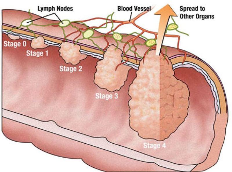 Ung thư đại tràng - Biến chứng nguy hiểm nhất của viêm đại tràng co thắt