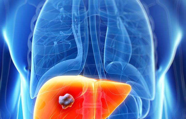 Ung thư đại tràng di căn gan giai đoạn cuối