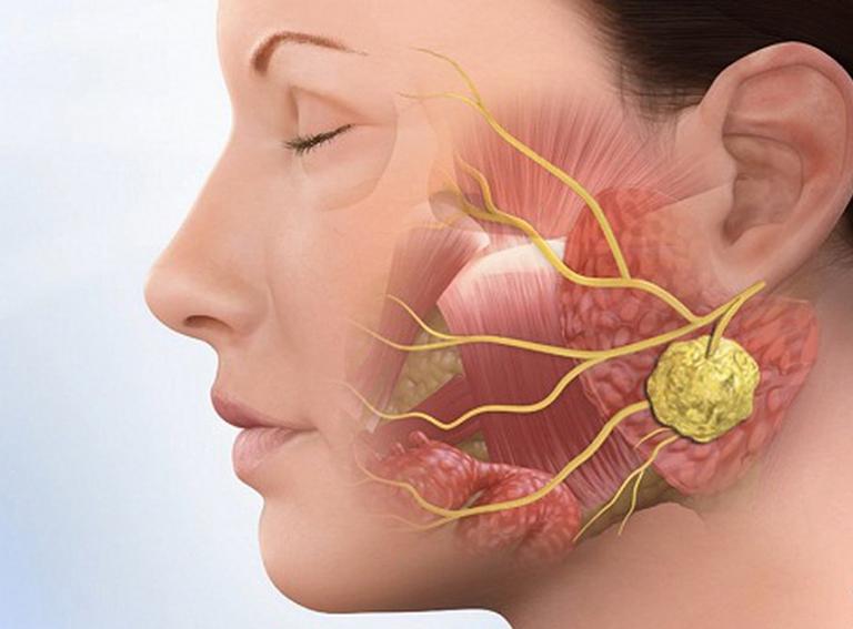 Ung thư vòm họng có lây được không?