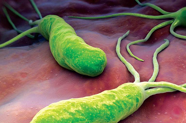 Nguyên nhân dẫn đếnbệnh viêm dạ dày HP dương tính