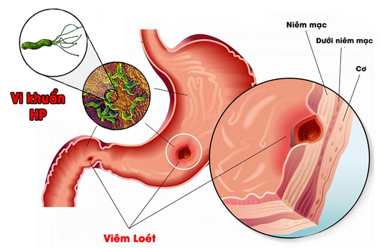 Bệnh viêm dạ dày HP dương tính