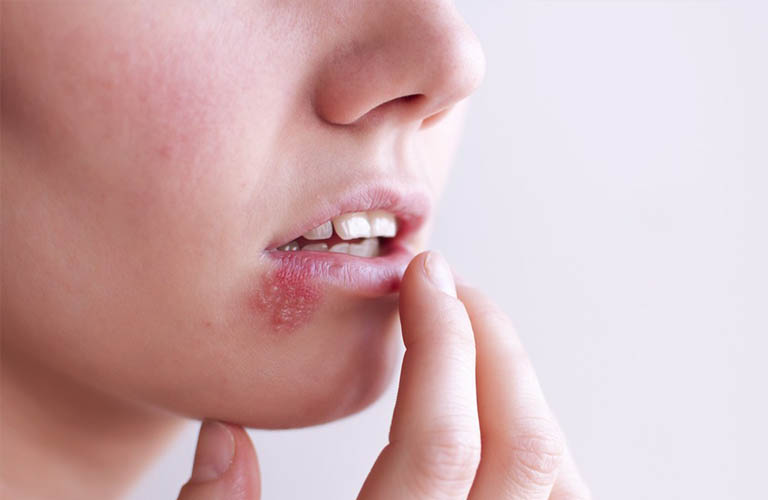 bệnh Herpes có thể gây ngứa, nổi mụn nước