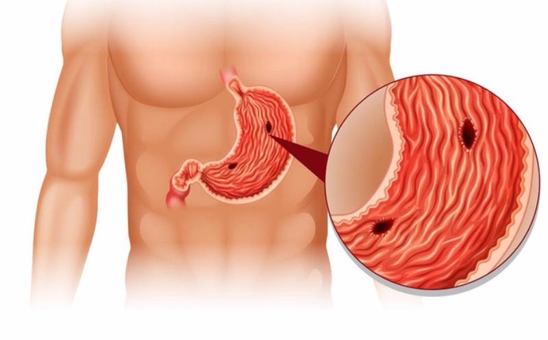 Viêm loét dạ dày có thể dẫn đến ung thư dạ dày