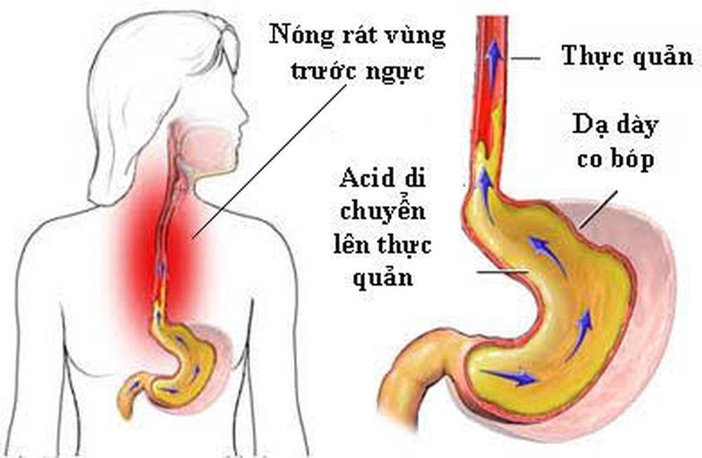 nguyên nhân viêm loét họng