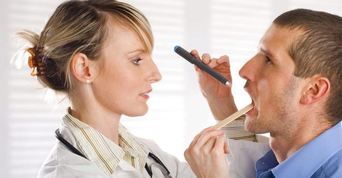 chẩn đoán viêm loét họng