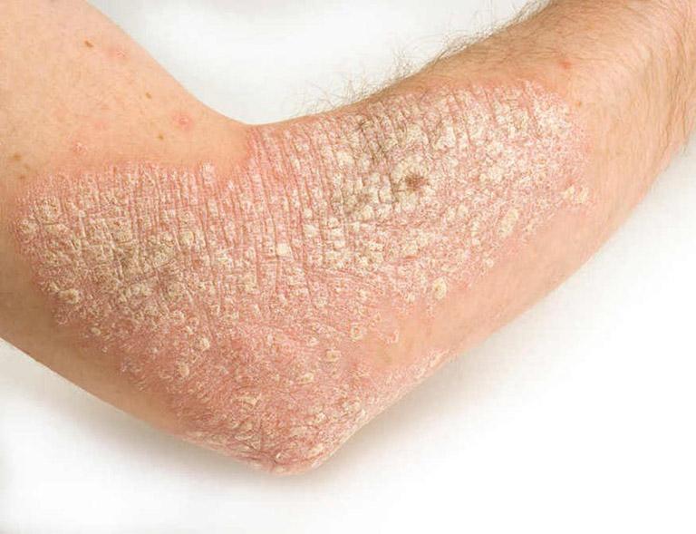 viêm nang lông và bệnh vẩy nến