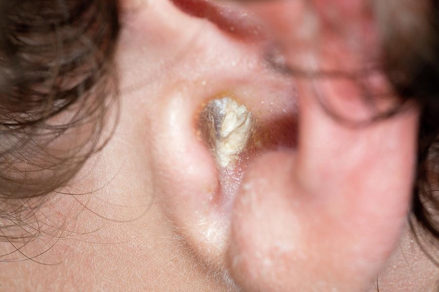 viêm tai ngoài