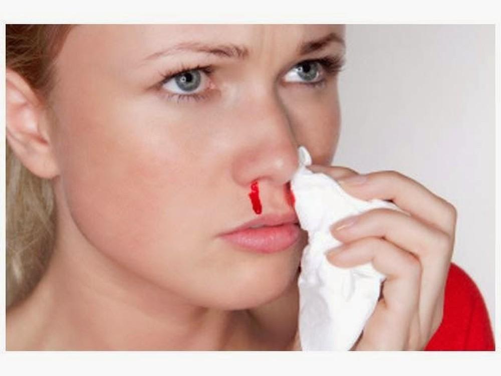 nguyên nhân xì mũi ra máu