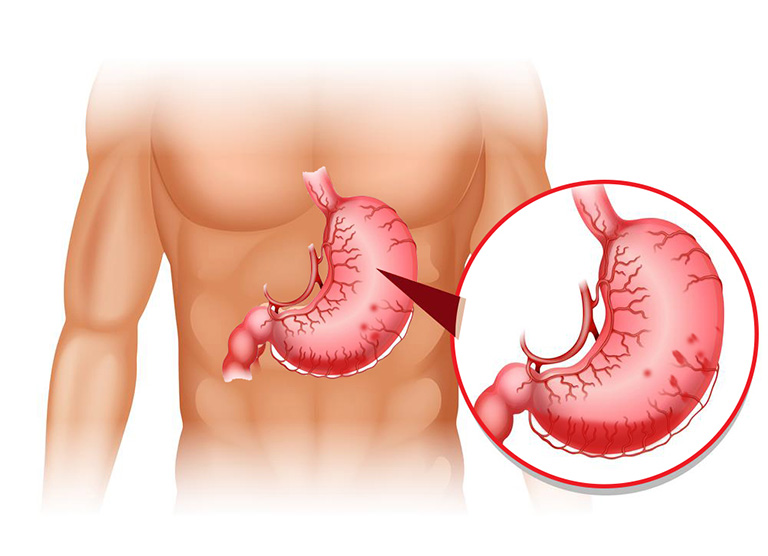 Xuất huyết dạ dày có thể gây nguy hiểm đến tính mạng của bệnh nhân