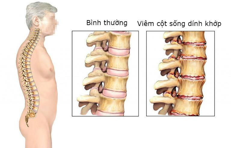 Bệnh viêm cột sống dính khớp bột phát cả ở nam và nữ, mọi màu da và lứa tuổi.