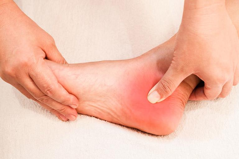 Bệnh gai xương gót chân là bệnh gì?
