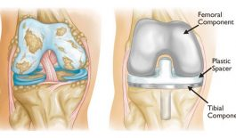 Bệnh gai xương khớp gối