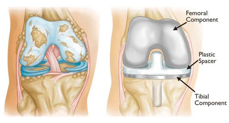 Biến chứng của bệnh gai xương khớp gối
