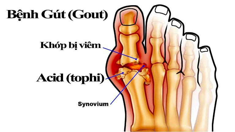 Bệnh gout để lại cho bệnh nhân những biến chứng khôn lường.