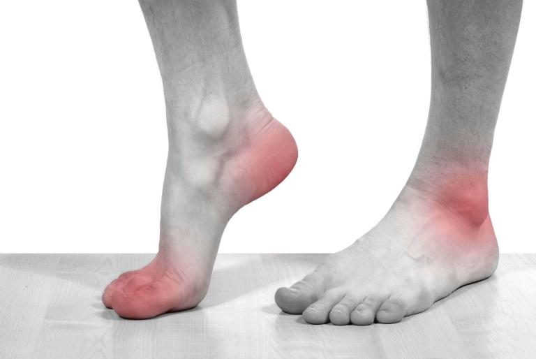 Biến chứng nguy hiểm nhất của bệnh gout là gây ra hỏng khớp, dị tật và bại liệt.