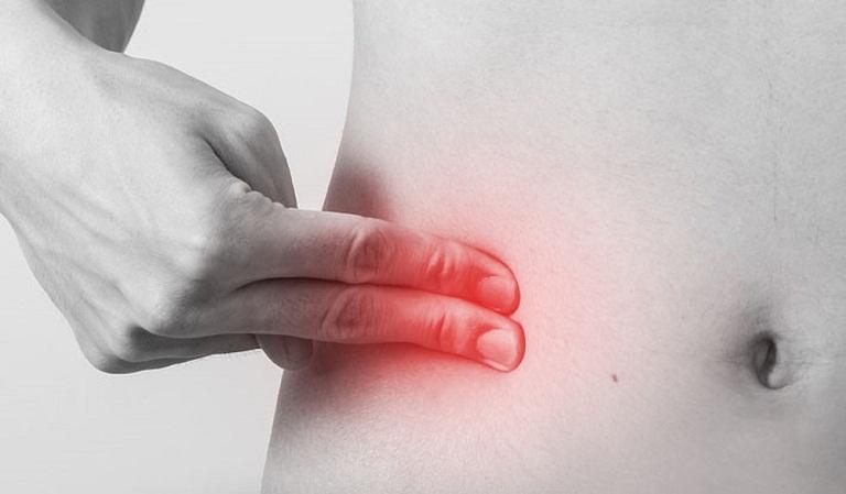 8 dấu hiệu nhận biết sớm đau ruột thừa bạn cần phải thuộc nằm lòng