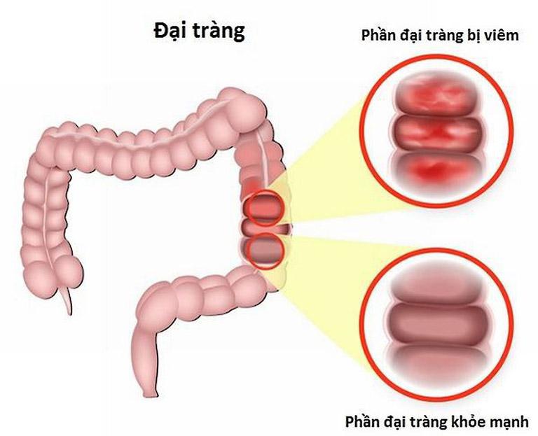 Đau thượng vị từng cơn có thể là biểu hiện của bệnh viêm đại tràng