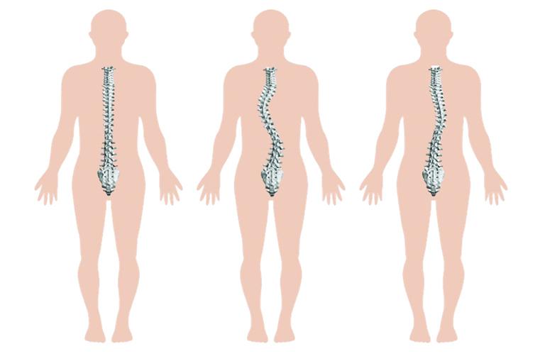 Gai cột sống có thể khiến người bệnh bị còng lưng