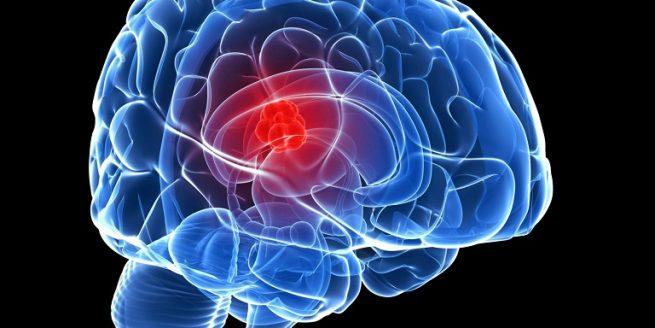 Các nhà nghiên cứu tiết lộ kế hoạch điều trị chứng khối u não nguy hiểm