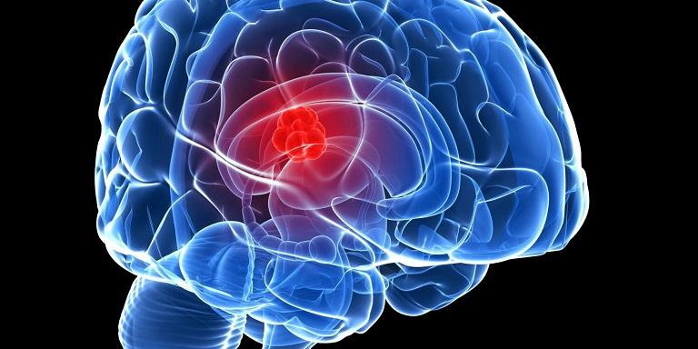 Điều trị chứng khối u não