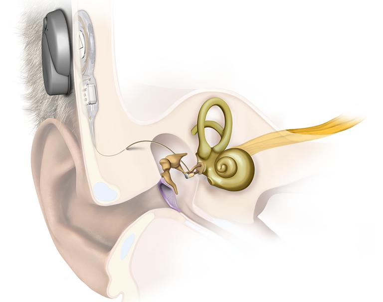 Cấy tai giữa giúp điều trị khiếm thính