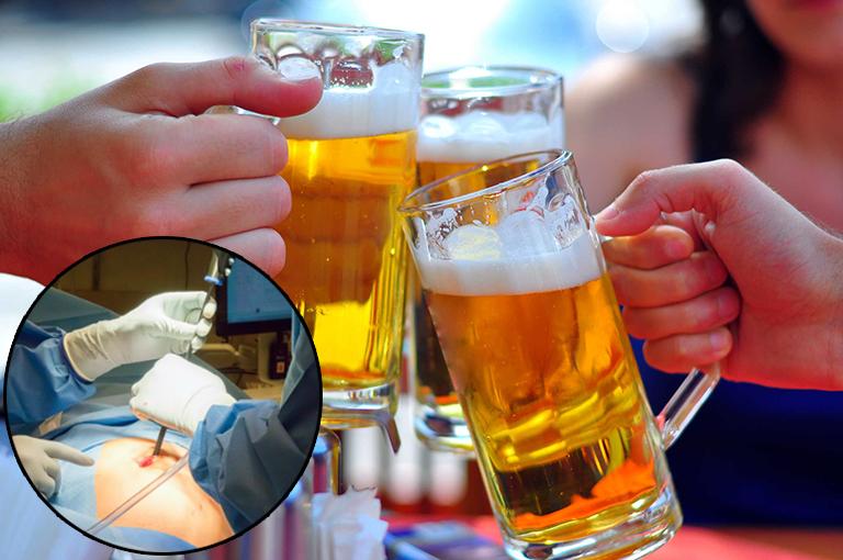 Sau mổ ruột thừa bao lâu thì uống bia rượu được?