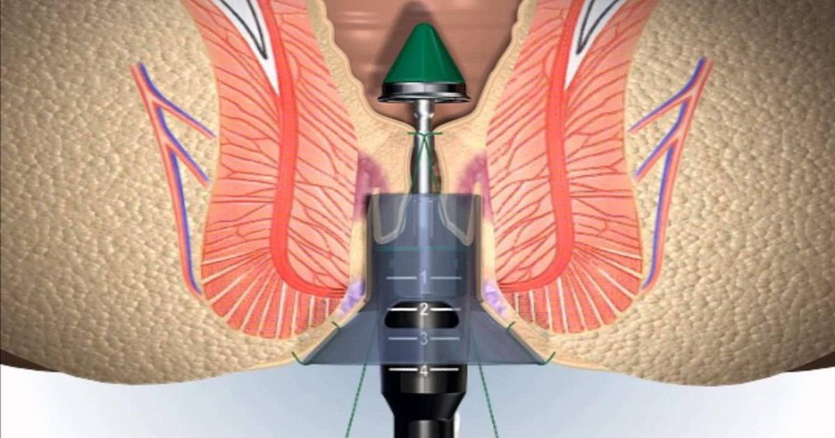 phương pháp phẫu thuật trĩ