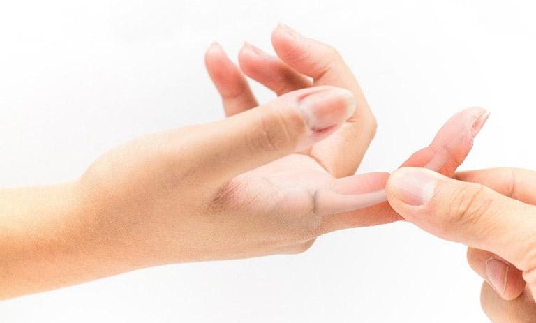 Thoái hóa khớp ngón tay