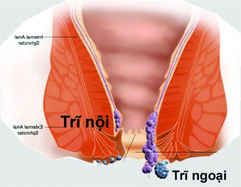 Trĩ nội và trĩ ngoại có những đặc điểm khác nhau