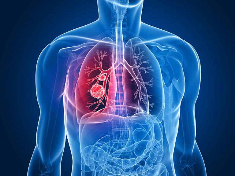 ung thư đại tràng di căn sang phổi