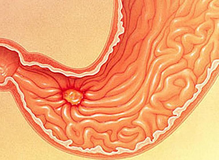viêm hang vị dạ dày là gì