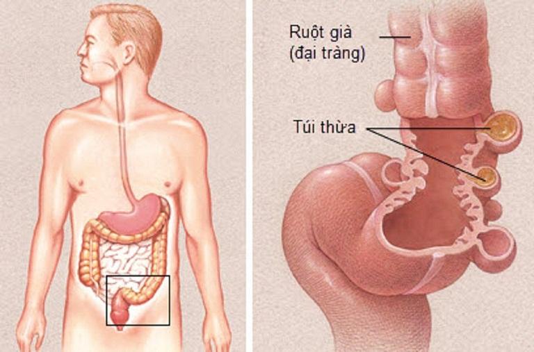 Sơ lược về bệnh viêm túi thừa manh tràng