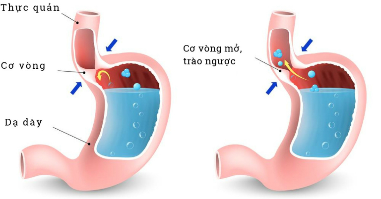 Bệnh trào ngược dạ dày thực quản có thể gây ra những biến chứng nghiêm trọng như ung thư thực quản, viêm đường hô hấp, viêm loét thực quản,...