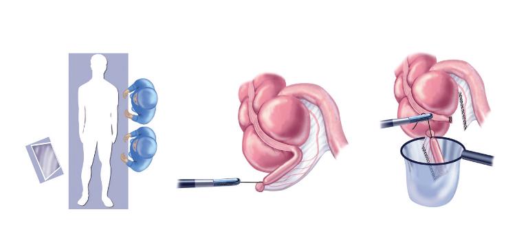 Mổ ruột thừa được diễn ra khi ruột thừa của người bệnh bị sưng viêm, gây đau bụng, khó chịu.