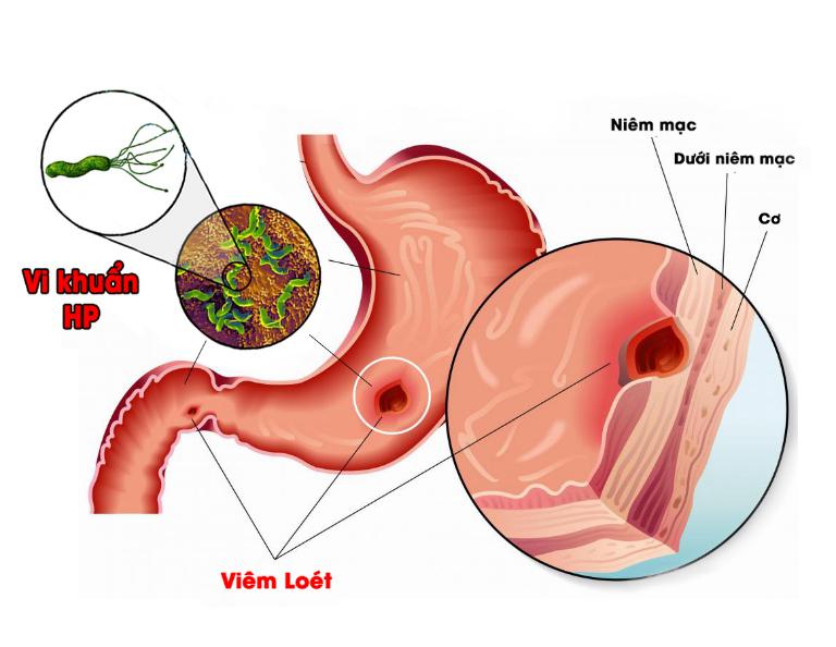 Viêm loét dạ dày nhiễm khuẩn HP là bệnh lý phổ biến