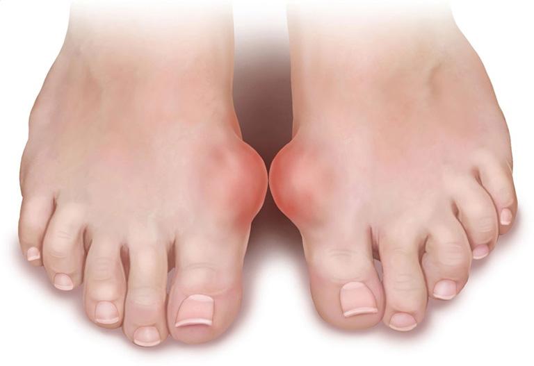 mẹo chữa bệnh gout bằng các phương pháp dân gian
