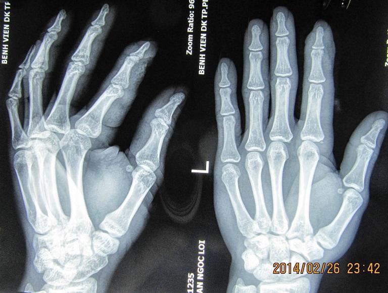 Triệu chứng gai xương cổ tay