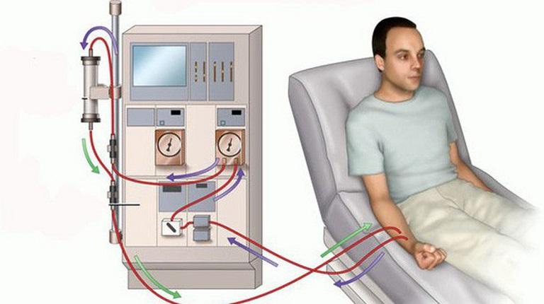 Bệnh nhân đang thực hiện chạy thận nhân tạo