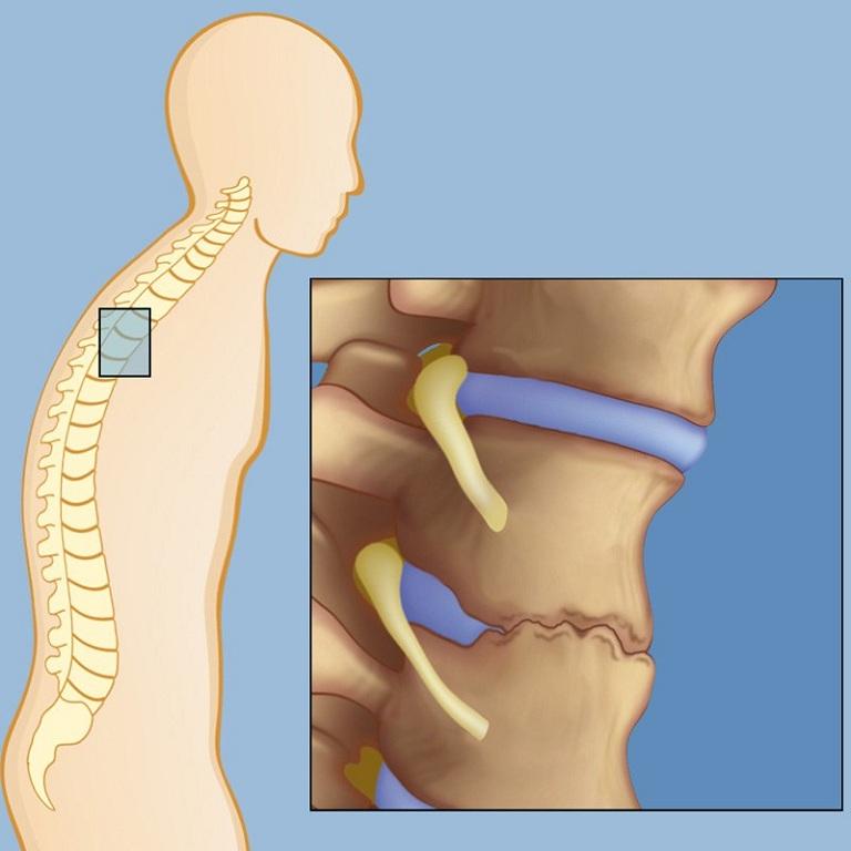 Bệnh viêm cột sống dính khớp