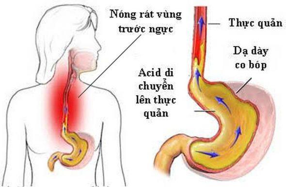 Điều trị trào ngược dạ dày bằng lá trầu không