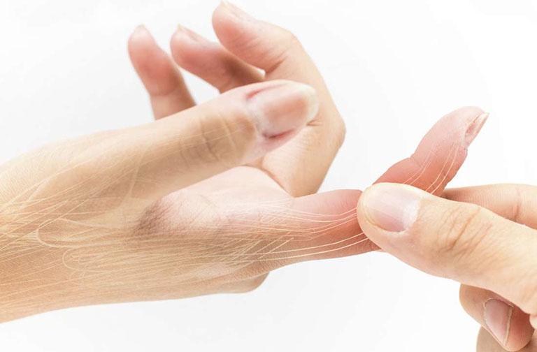 đau nhức cổ tay phải