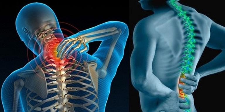 Dấu hiệu bệnh viêm cột sống dính khớp