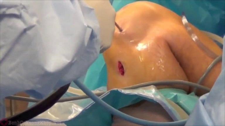 Điều trị đau khớp gối ở người trẻ tuổi bằng phẫu thuật