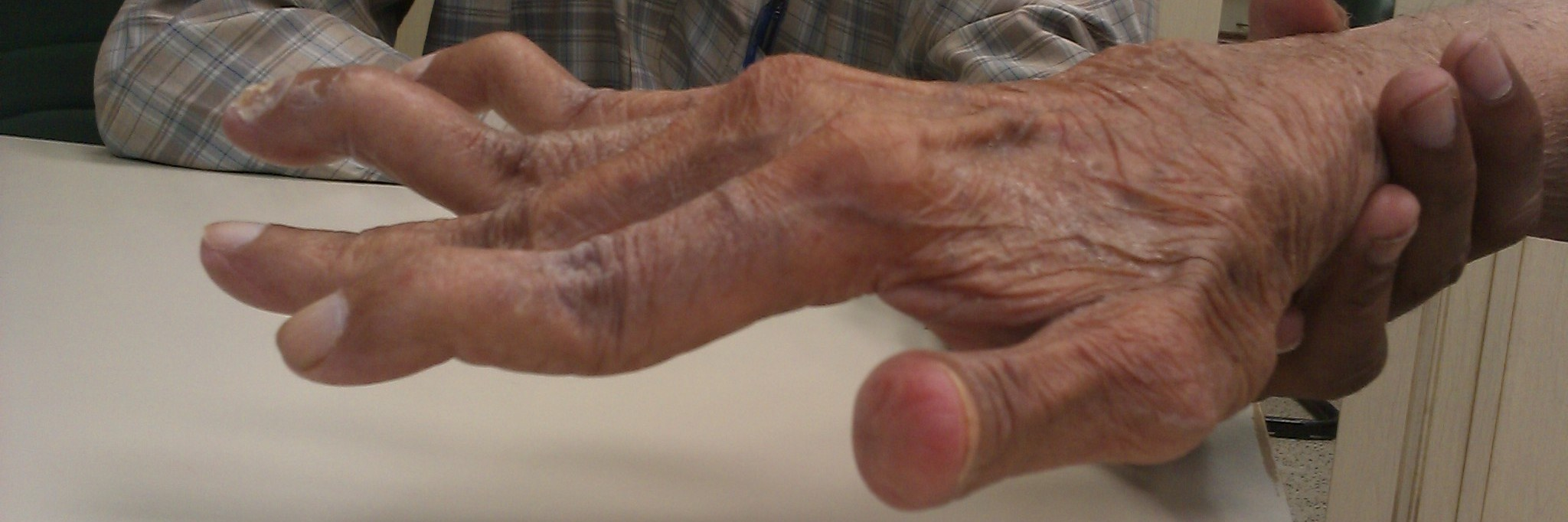 triệu chứng đau khớp ngón tay