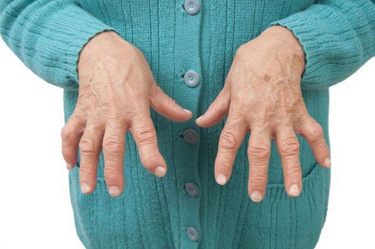 đau cánh tay phải là bệnh gì