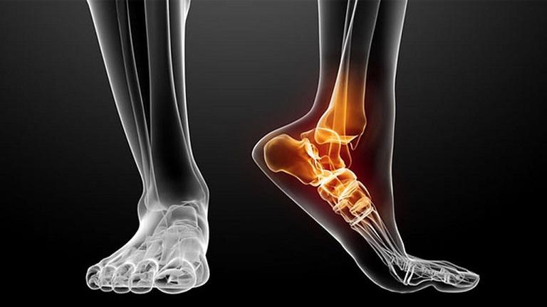 Gãy xương là dấu hiệu bệnh loãng xương