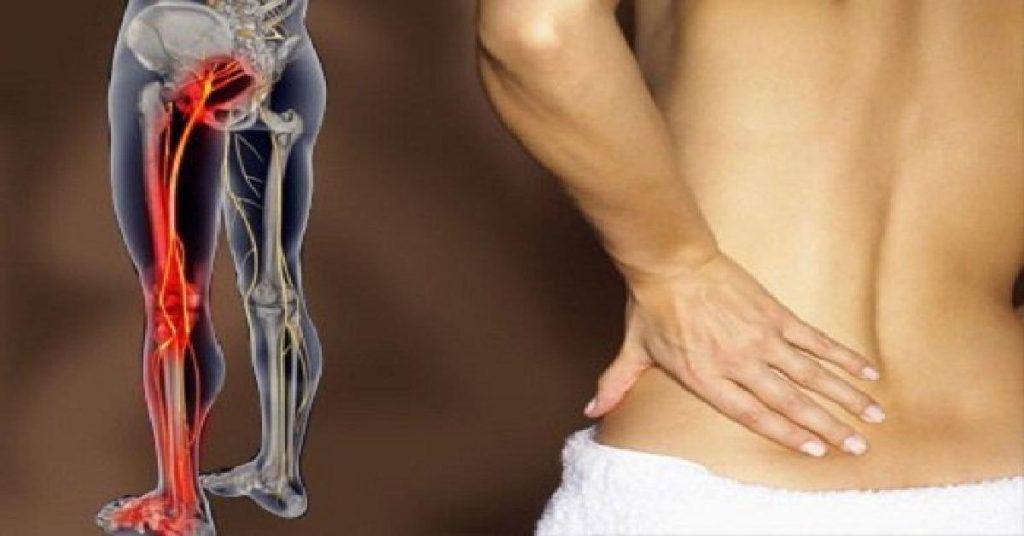 điều trị đau dây thần kinh tọa không cần phẫu thuật