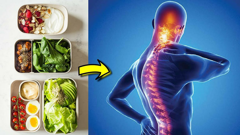 Nên ăn gì khi bị viêm cột sống dính khớp
